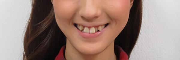 八重歯の例
