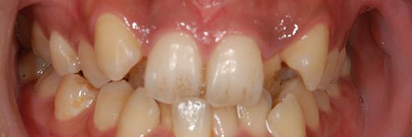 八重歯の例2