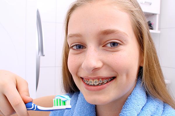 矯正装置をつけたらよく歯磨きをしましょう