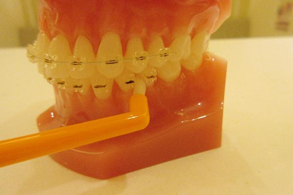 歯の隙間や奥歯の届きにくいところ