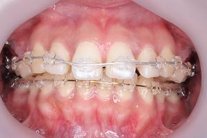 えりこの抜歯矯正体験記