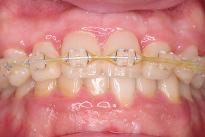 渋谷の矯正歯科
