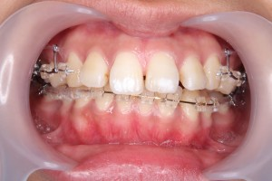 ホワイトエッセンス渋谷矯正歯科の治療例