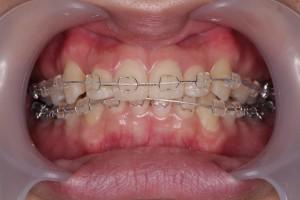 渋谷の矯正歯科の口コミ