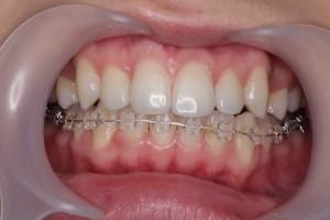 渋谷の矯正歯科の治療例