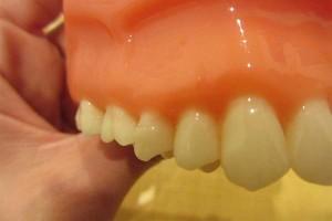 歯の表面をよく磨く